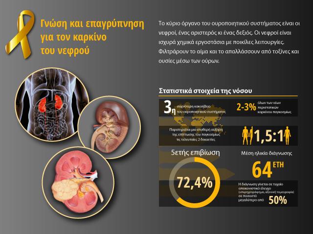 bannerMediumKidney cancer bouzalas urology